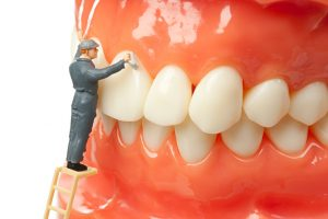 cleaning your dental implants